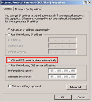 Activate Obtain DNS server address automatically